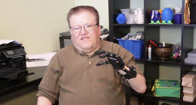 Article_cyborg-beast-3d-printed-limbs-1